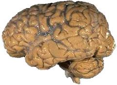 Human brain - planned obsolescence