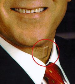 Politician equipped with the discreet, effective Laryngeal Bleep Implant